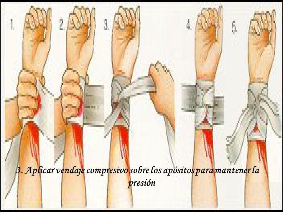 3. Aplicar vendaje compresivo sobre los apósitos para mantener la presión
