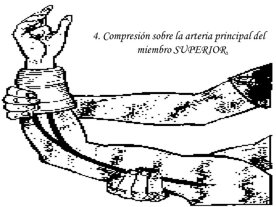 4. Compresión sobre la arteria principal del miembro SUPERIOR.