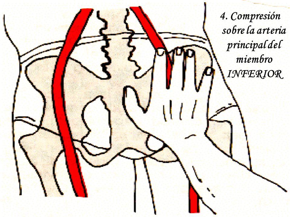 4. Compresión sobre la arteria principal del miembro INFERIOR