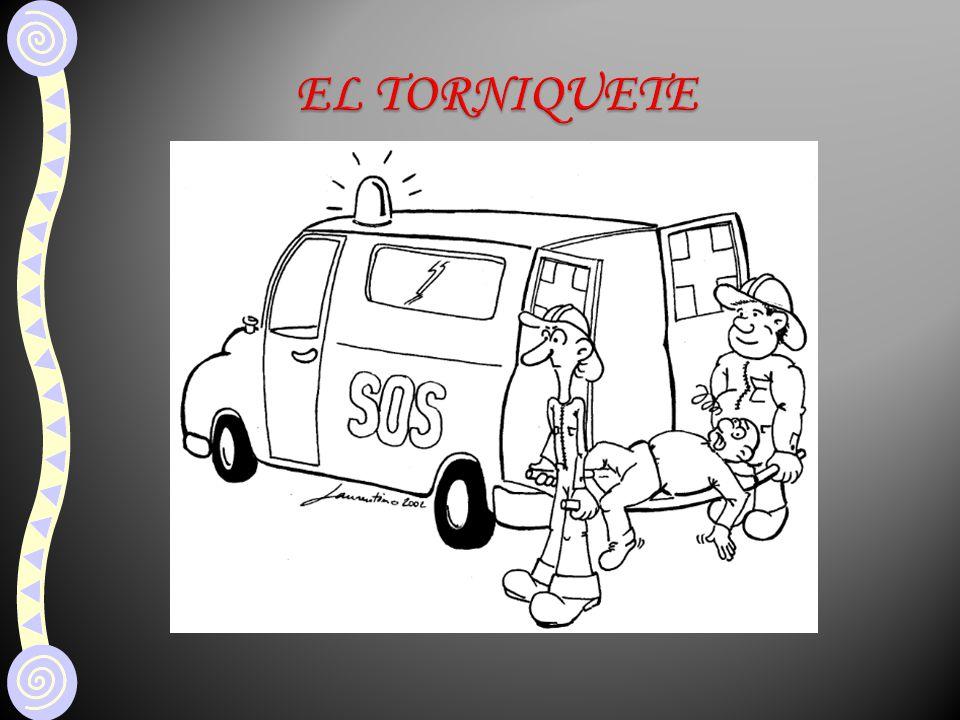 EL TORNIQUETE