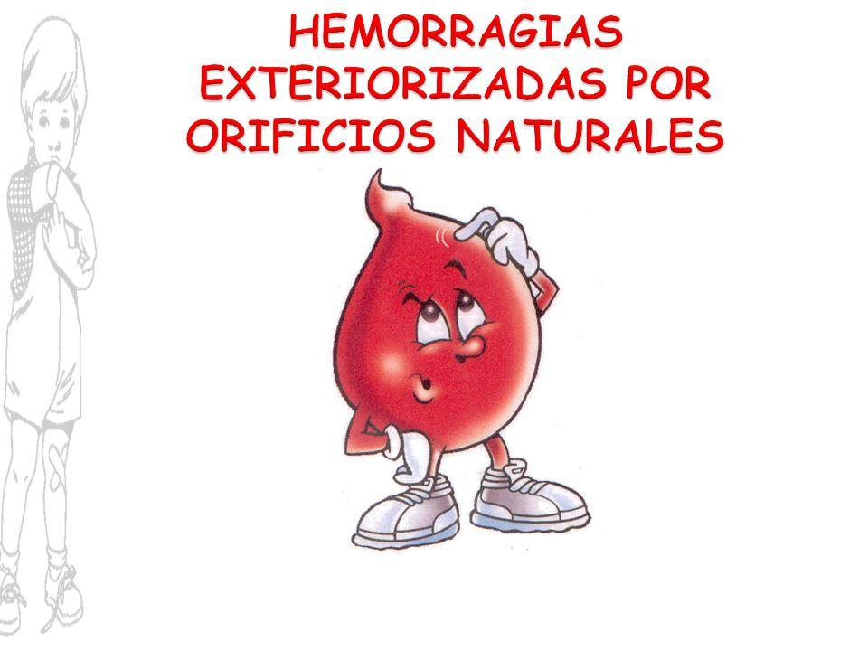 HEMORRAGIAS EXTERIORIZADAS POR ORIFICIOS NATURALES