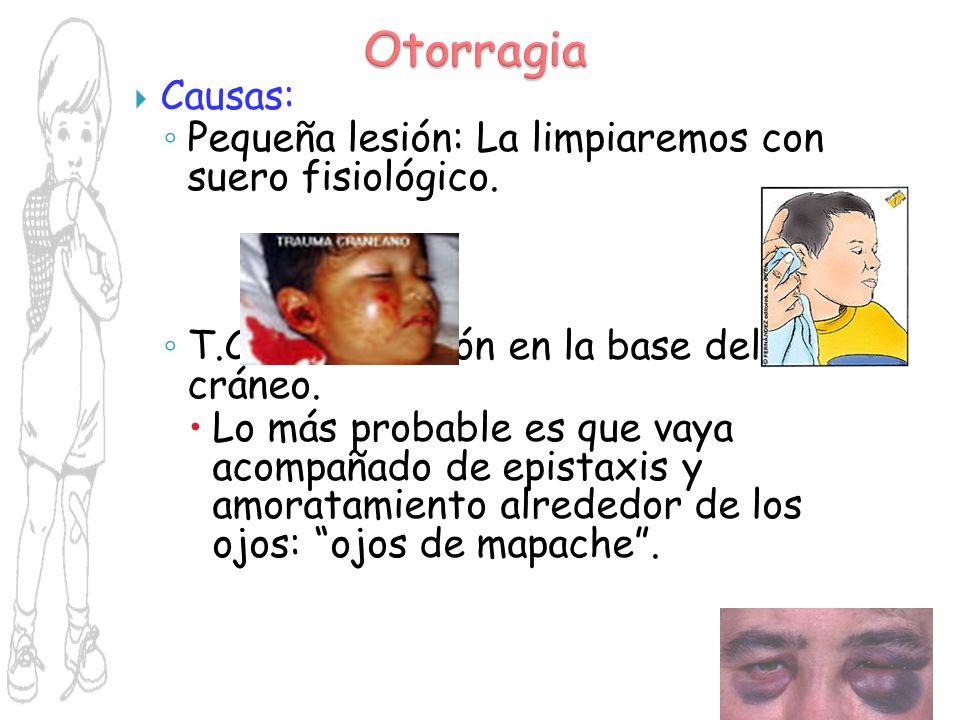 Otorragia Causas: Pequeña lesión: La limpiaremos con suero fisiológico. T.C.E.: Por lesión en la base del cráneo.