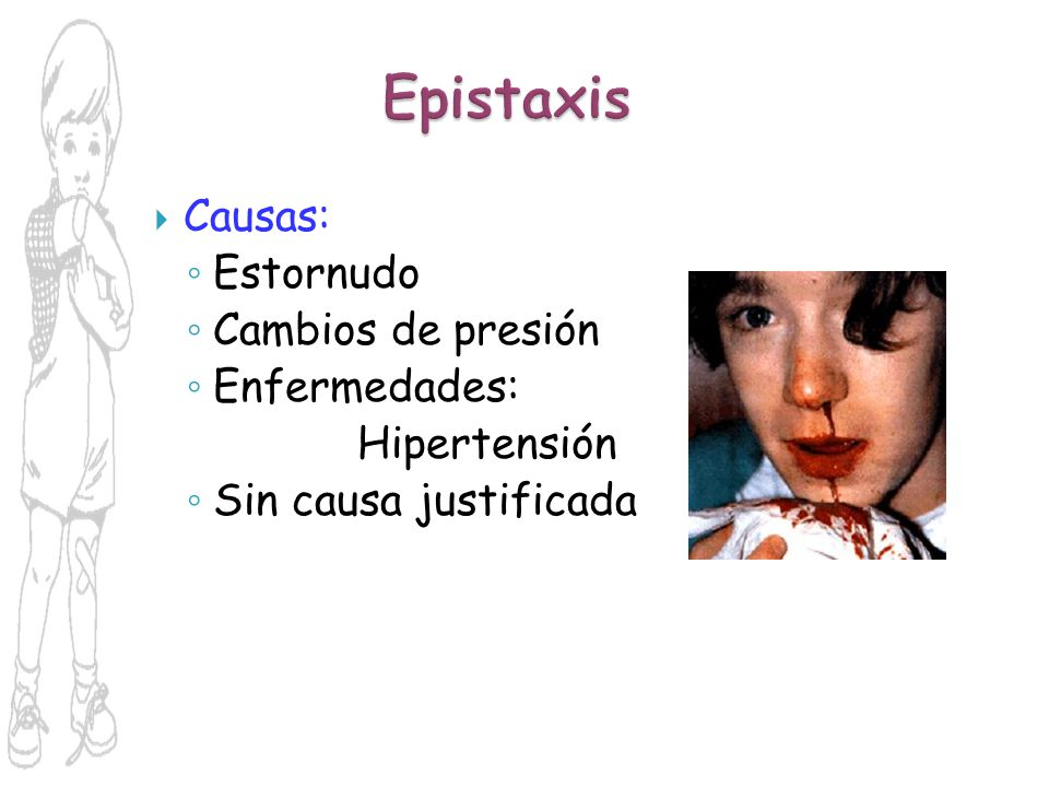 Epistaxis Causas: Estornudo Cambios de presión Enfermedades: