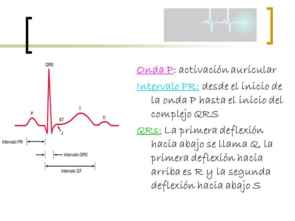Onda P: activación auricular