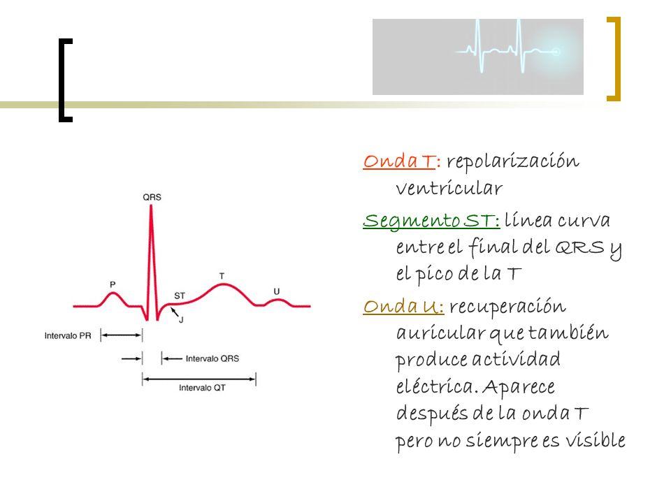 Onda T: repolarización ventricular