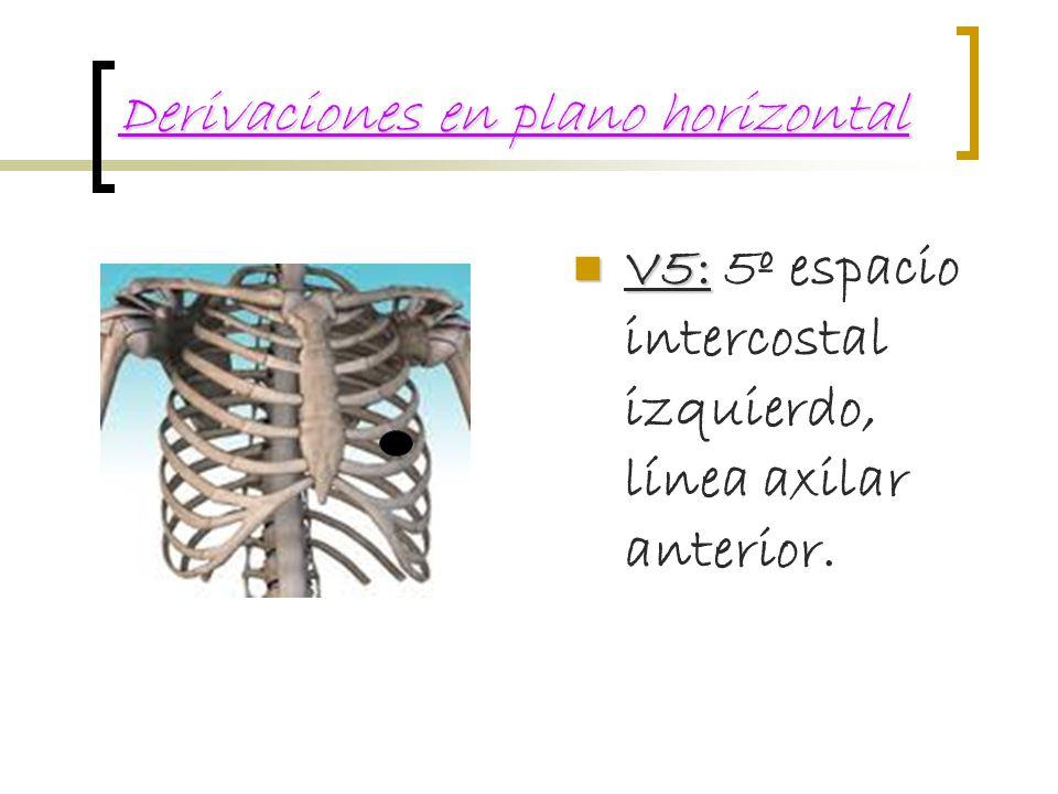 Derivaciones en plano horizontal
