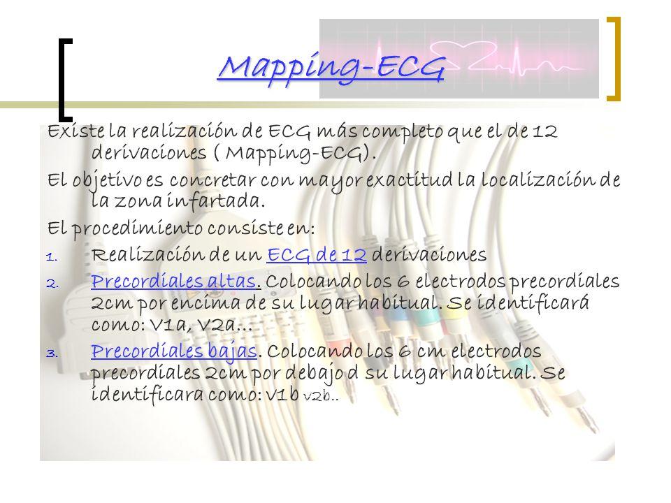Mapping-ECG Existe la realización de ECG más completo que el de 12 derivaciones ( Mapping-ECG).