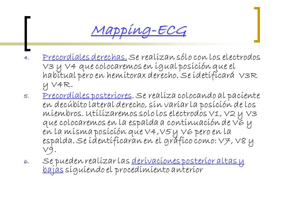 Mapping-ECG
