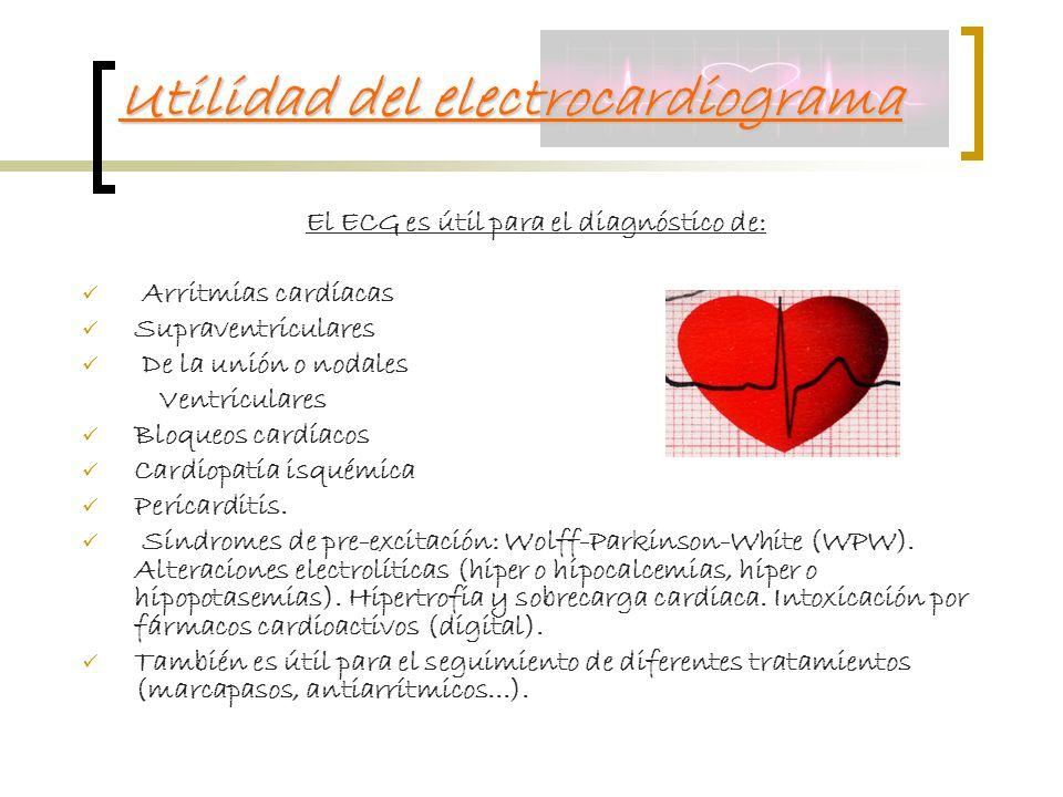Utilidad del electrocardiograma