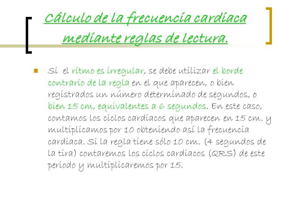 Cálculo de la frecuencia cardiaca mediante reglas de lectura.