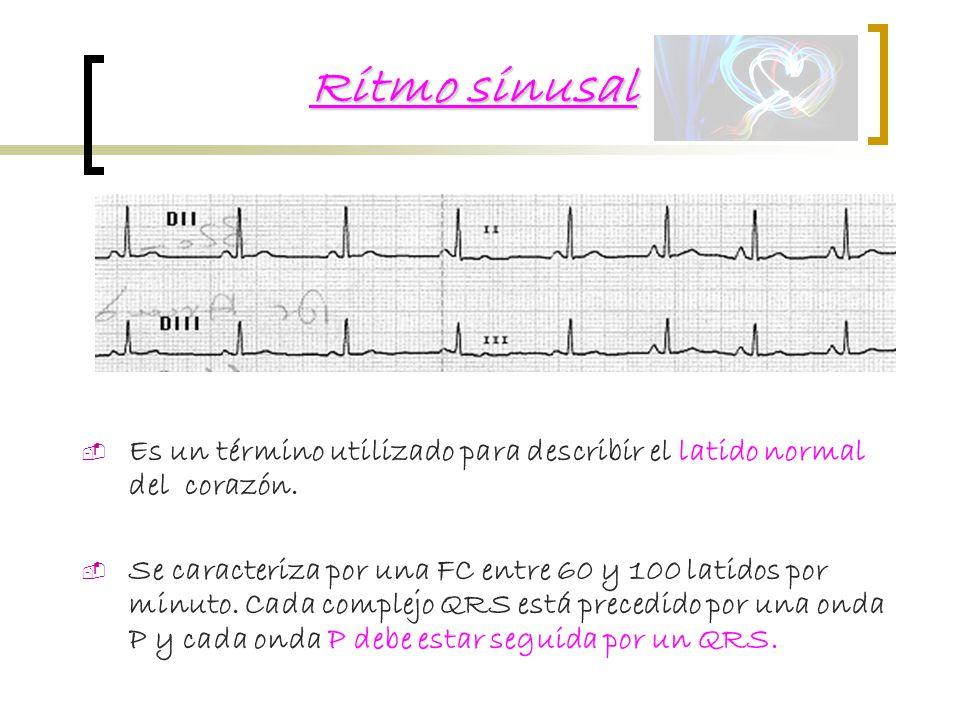 Ritmo sinusal Es un término utilizado para describir el latido normal del corazón.