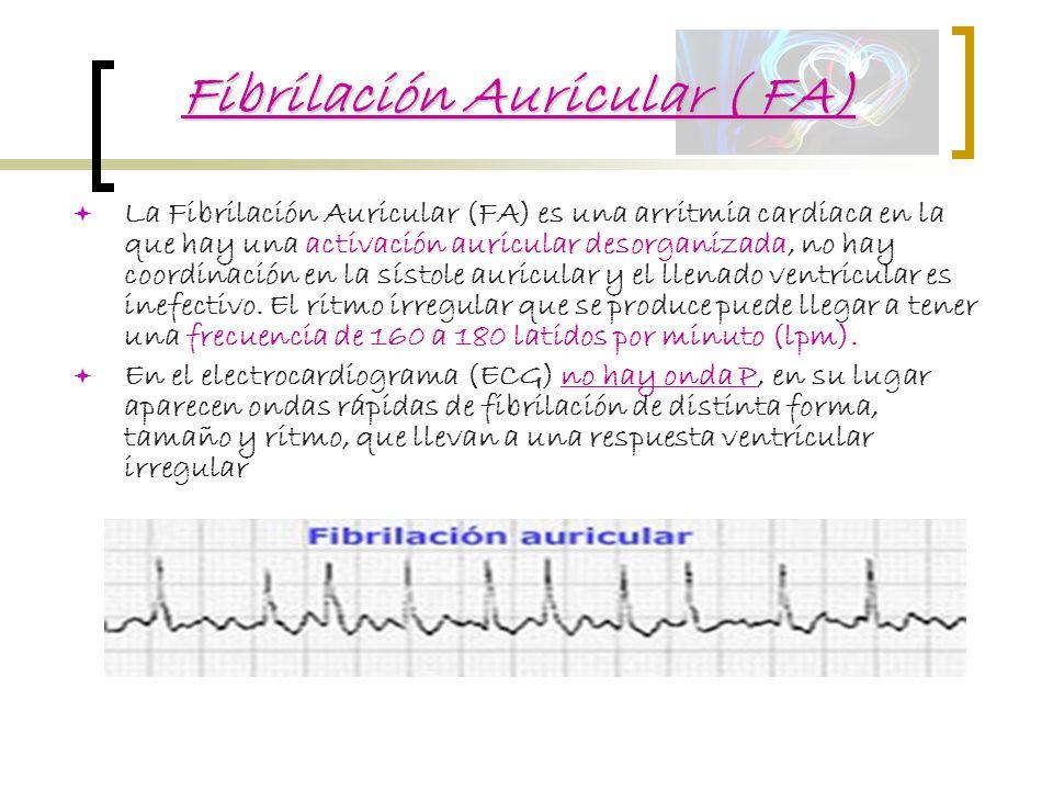 Fibrilación Auricular ( FA)