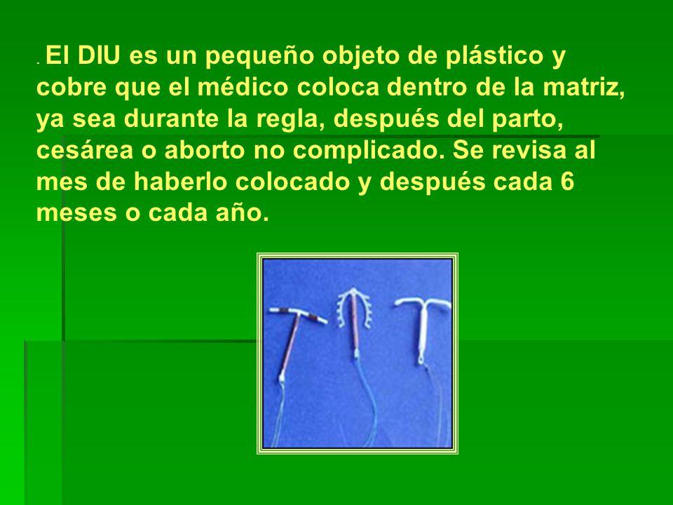 El DIU es un pequeño objeto de plástico y cobre que el médico coloca dentro de la matriz, ya sea durante la regla, después del parto, cesárea o aborto no complicado.