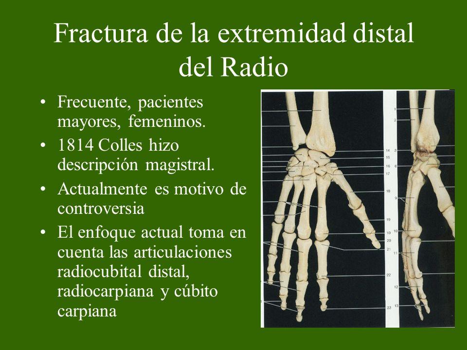 Fractura de la extremidad distal del Radio