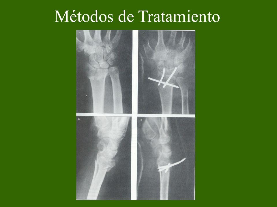 Métodos de Tratamiento