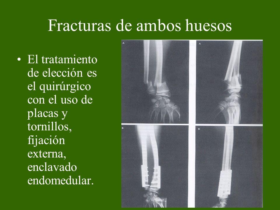 Fracturas de ambos huesos