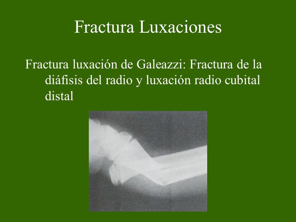 Fractura Luxaciones Fractura luxación de Galeazzi: Fractura de la diáfisis del radio y luxación radio cubital distal.