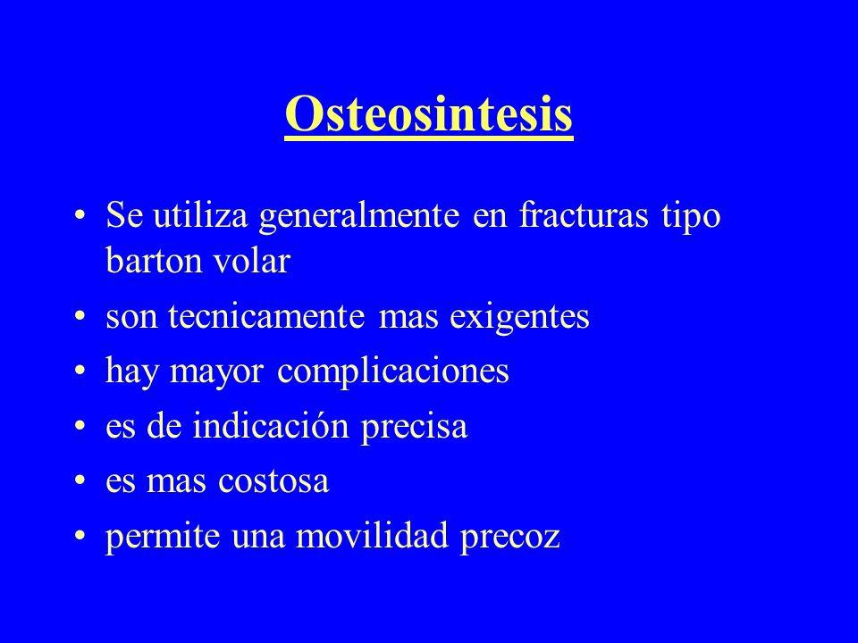 Osteosintesis Se utiliza generalmente en fracturas tipo barton volar