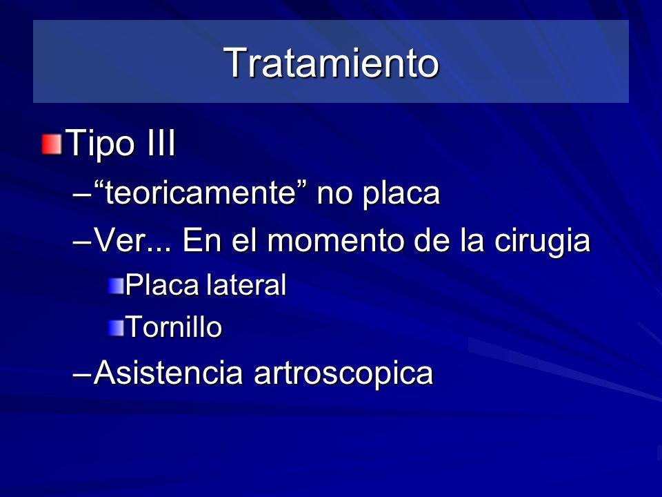 Tratamiento Tipo III teoricamente no placa