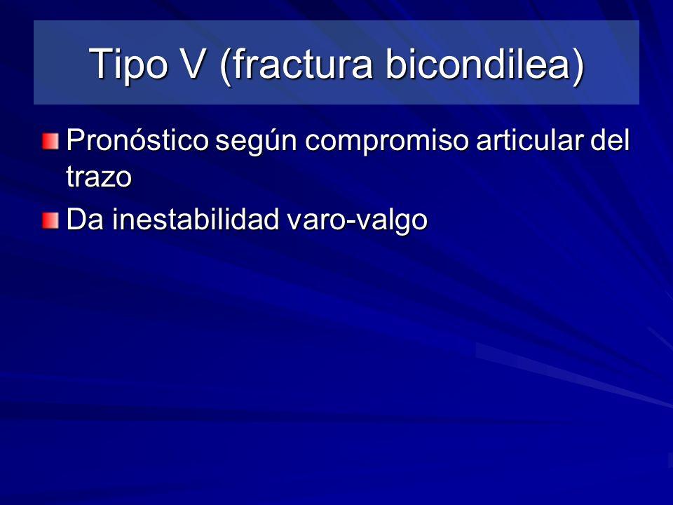 Tipo V (fractura bicondilea)