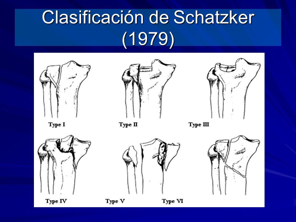 Clasificación de Schatzker (1979)