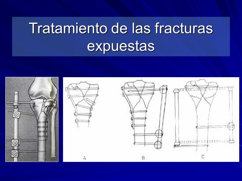 Tratamiento de las fracturas expuestas
