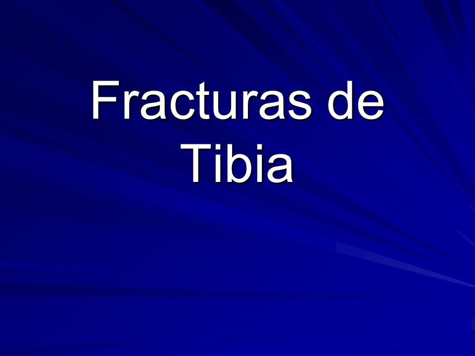 Fracturas de Tibia
