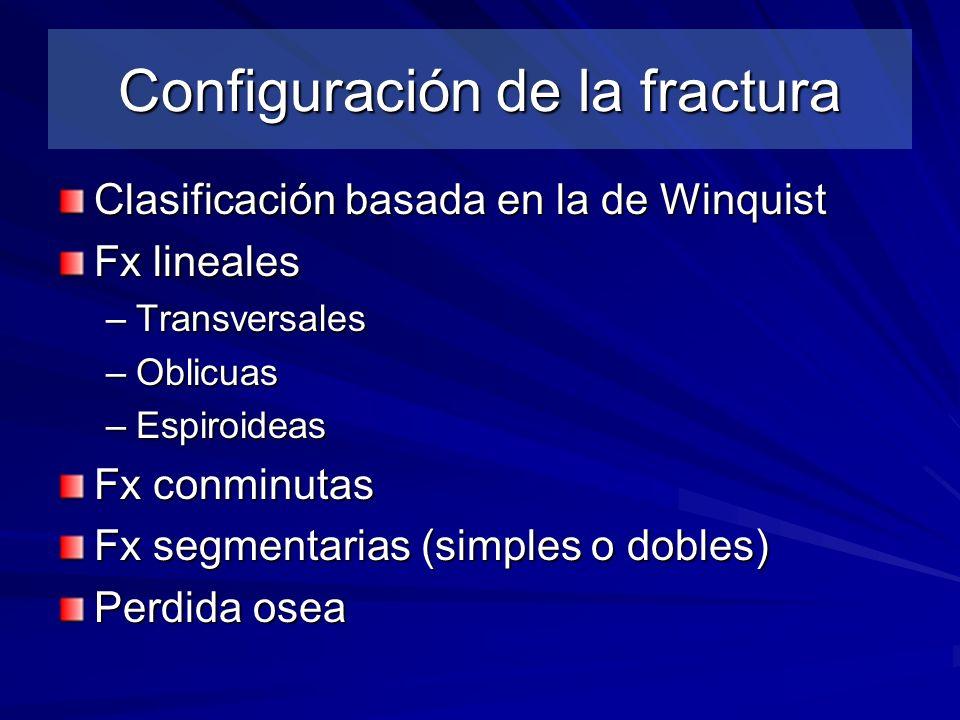Configuración de la fractura
