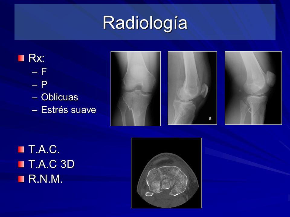 Radiología Rx: F P Oblicuas Estrés suave T.A.C. T.A.C 3D R.N.M.