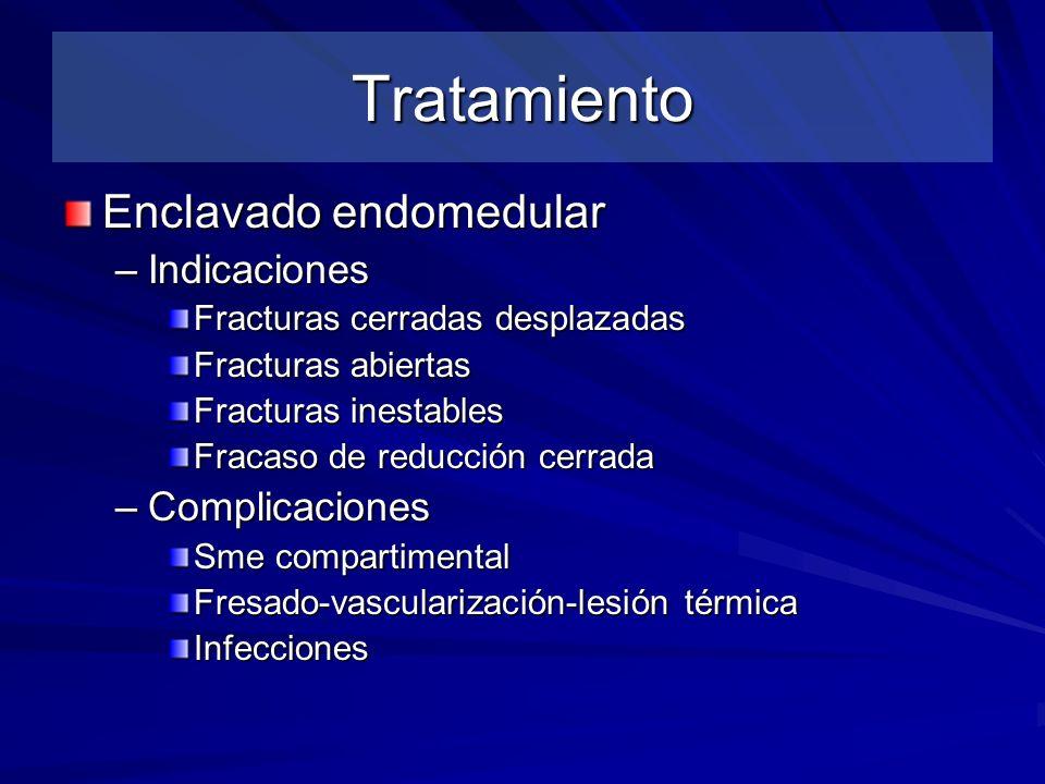 Tratamiento Enclavado endomedular Indicaciones Complicaciones
