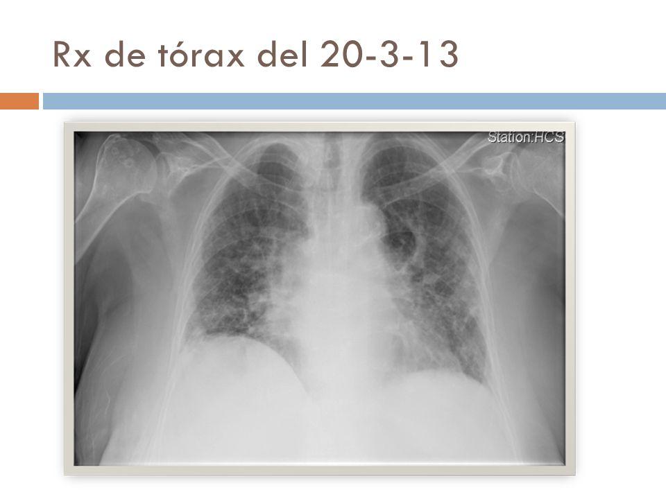 Rx de tórax del 20-3-13