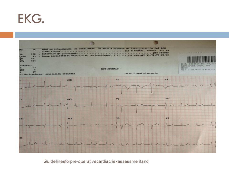 EKG. Guidelinesforpre-operativecardiacriskassessmentand