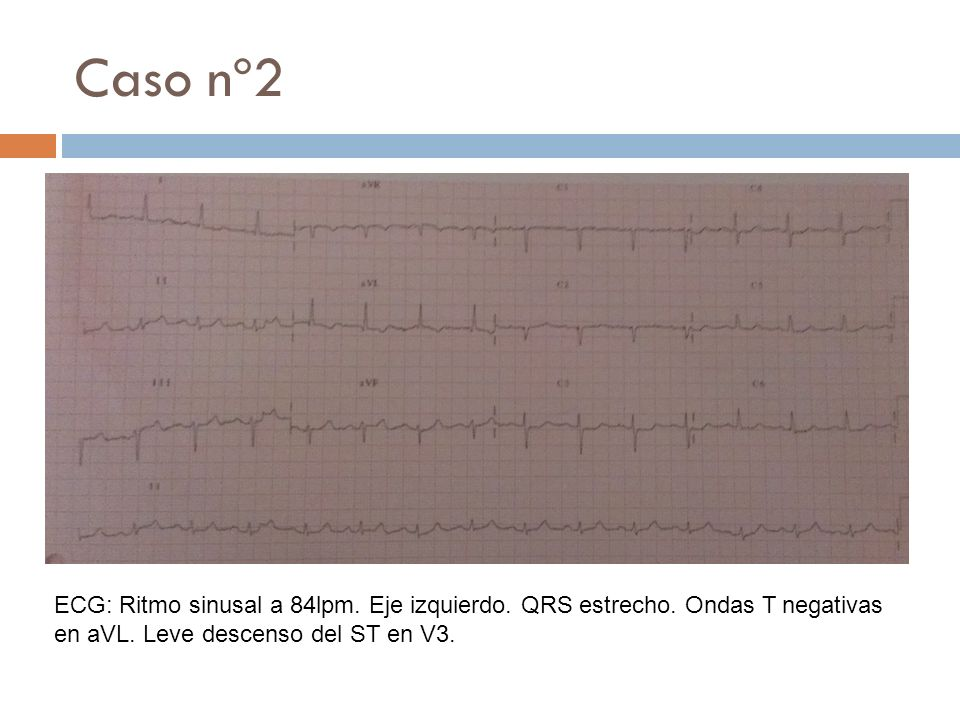 Caso nº2 ECG: Ritmo sinusal a 84lpm. Eje izquierdo.