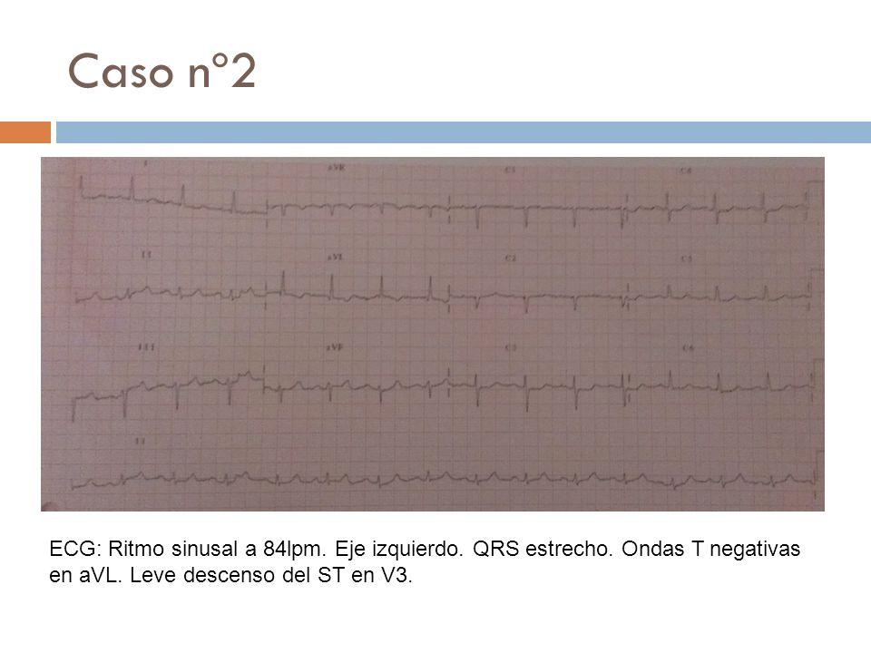 Caso nº2ECG: Ritmo sinusal a 84lpm.Eje izquierdo.