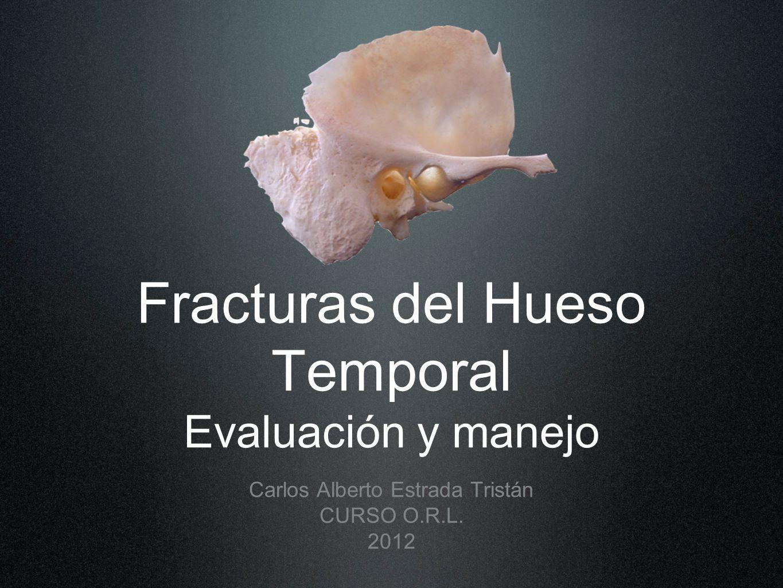 Fracturas del Hueso Temporal Evaluación y manejo
