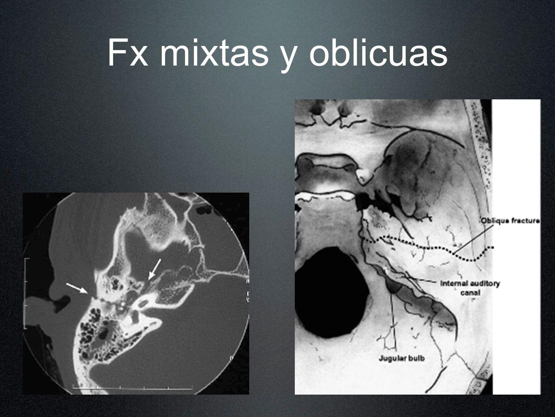 Fx mixtas y oblicuas