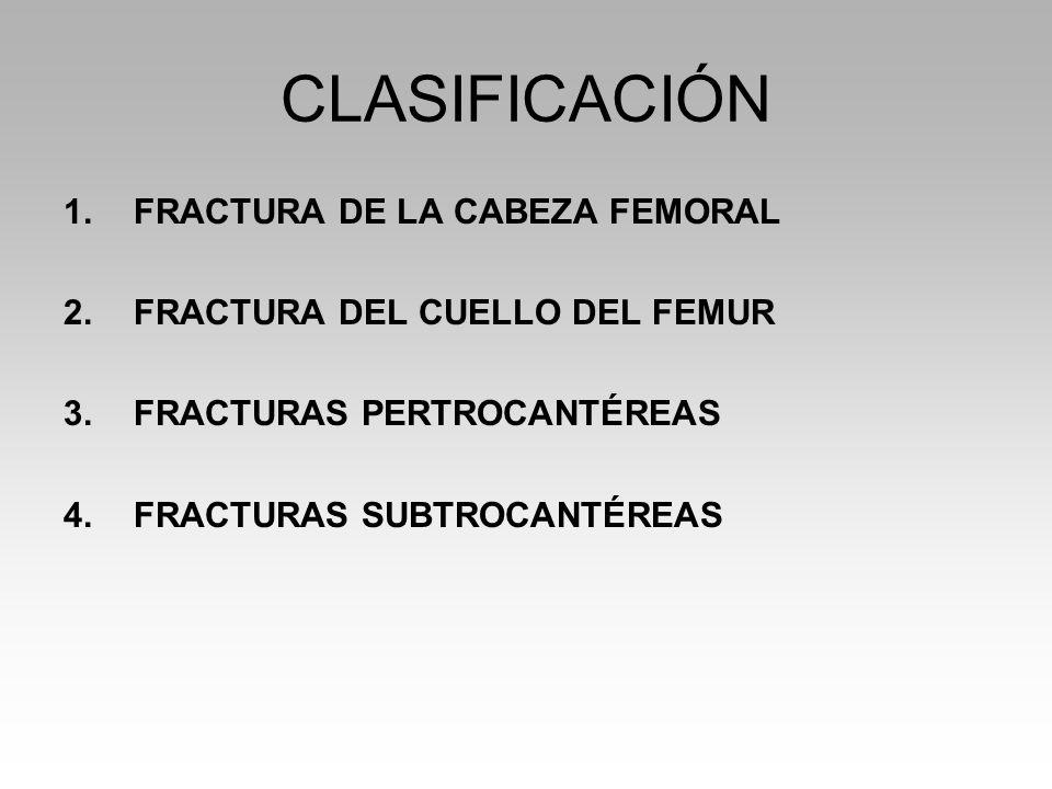 CLASIFICACIÓN FRACTURA DE LA CABEZA FEMORAL