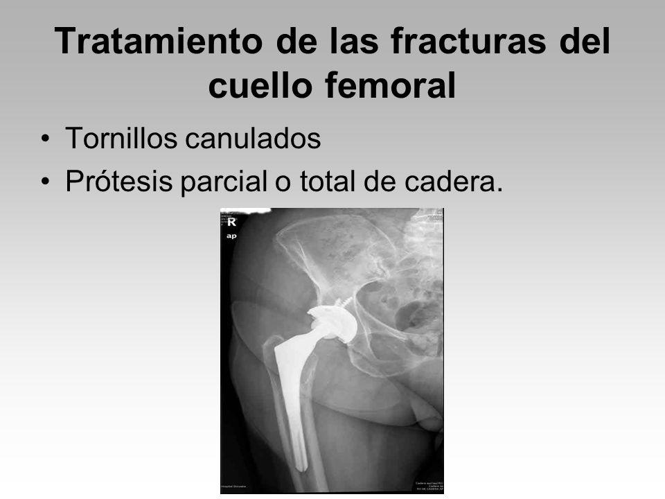 Tratamiento de las fracturas del cuello femoral