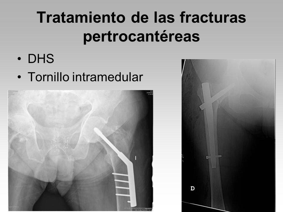 Tratamiento de las fracturas pertrocantéreas
