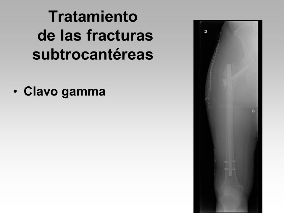 Tratamiento de las fracturas subtrocantéreas