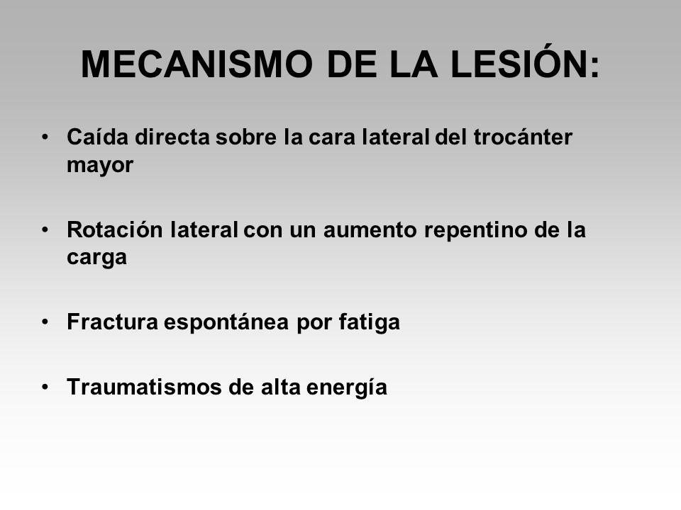 MECANISMO DE LA LESIÓN: