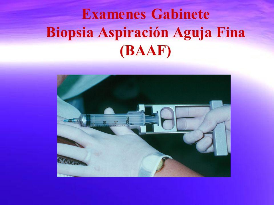 Examenes Gabinete Biopsia Aspiración Aguja Fina (BAAF)