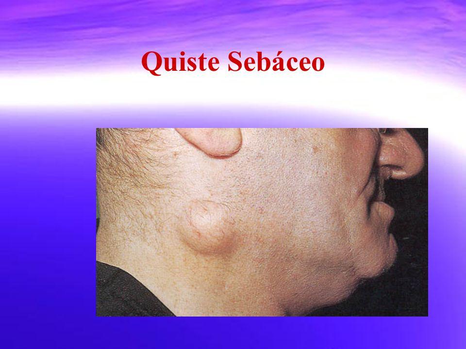 Quiste Sebáceo