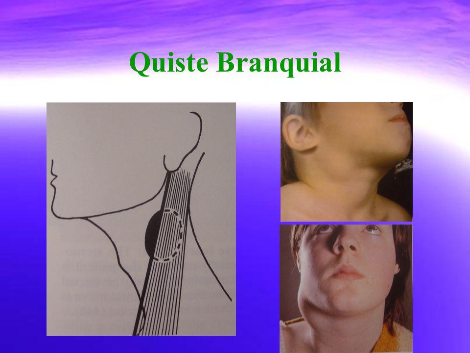 Quiste Branquial