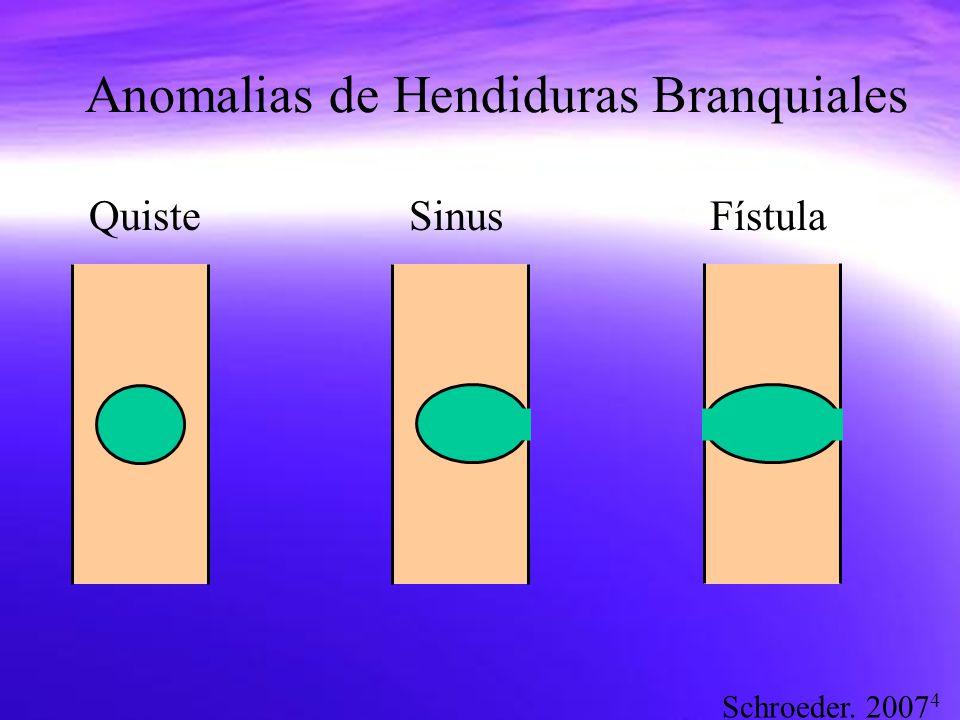 Anomalias de Hendiduras Branquiales
