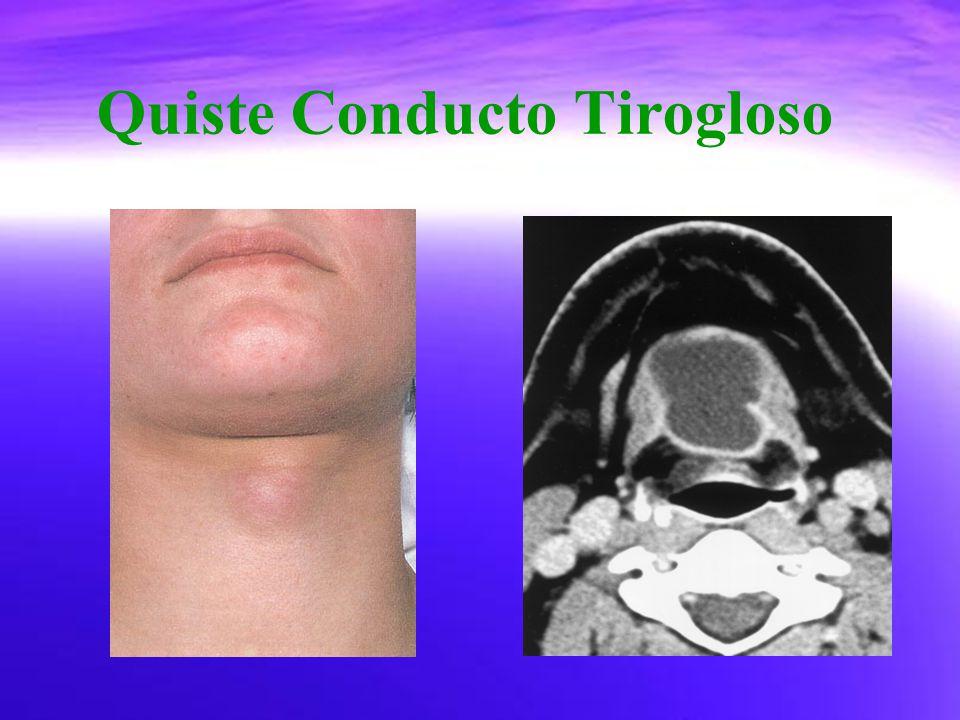 Quiste Conducto Tirogloso