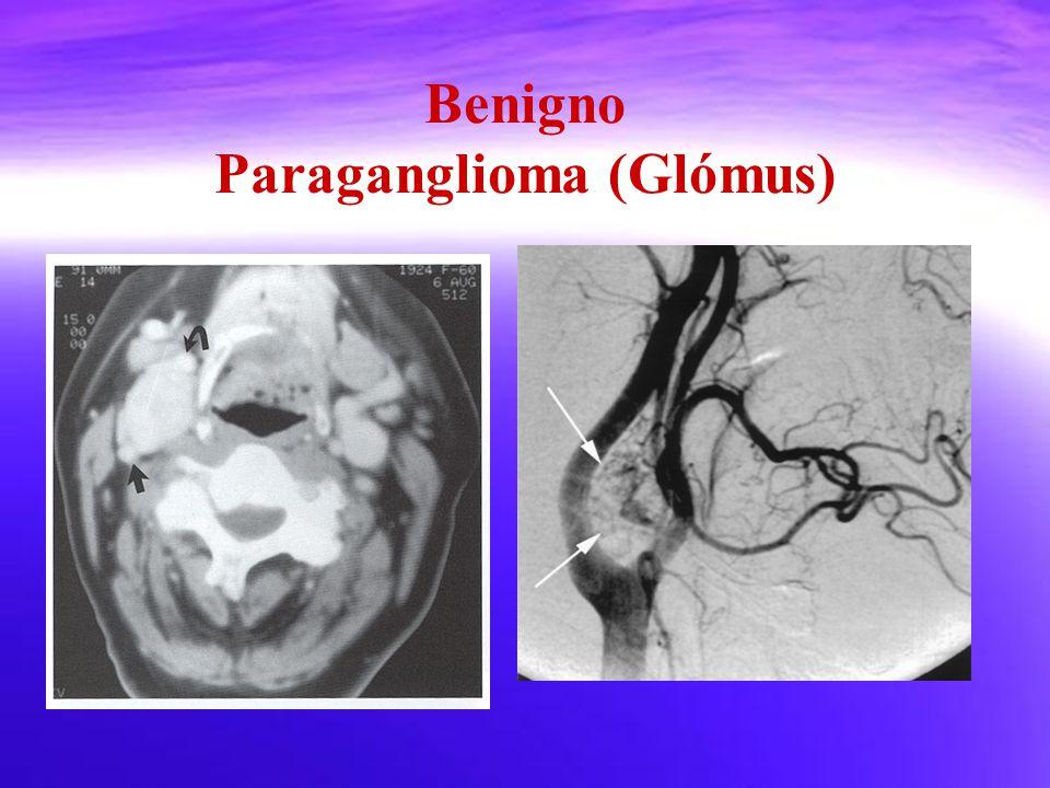 Benigno Paraganglioma (Glómus)