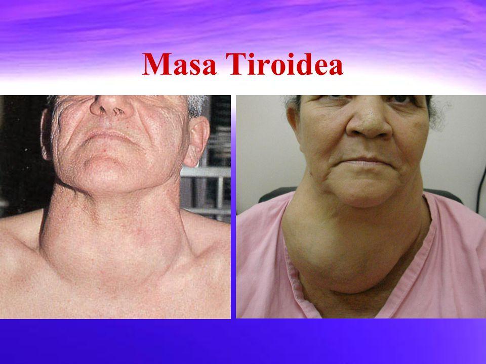 Masa Tiroidea