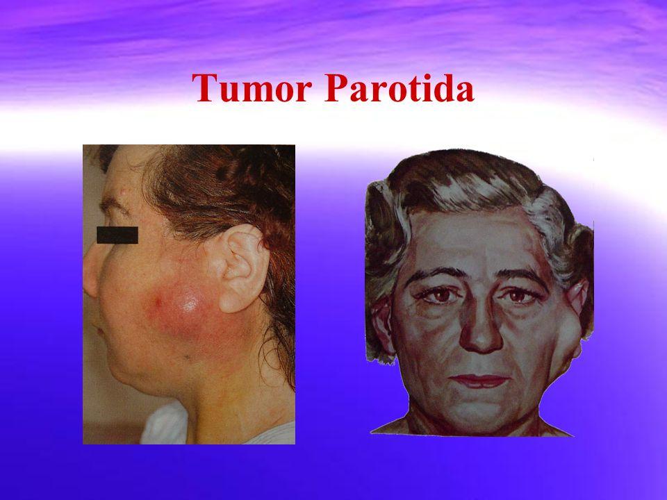 Tumor Parotida