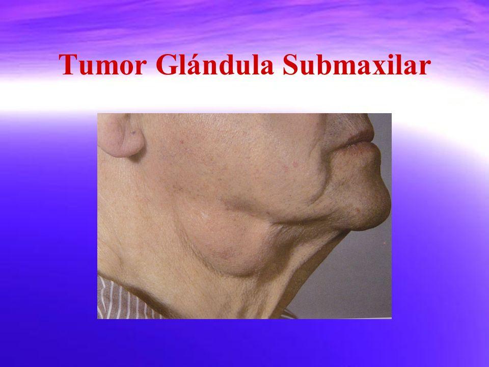 Tumor Glándula Submaxilar